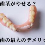 入れ歯で骨と歯茎がやせ細っていくことを知っていますか?