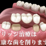 ブリッジ治療は健康な両隣の歯を大きく削り取ります。